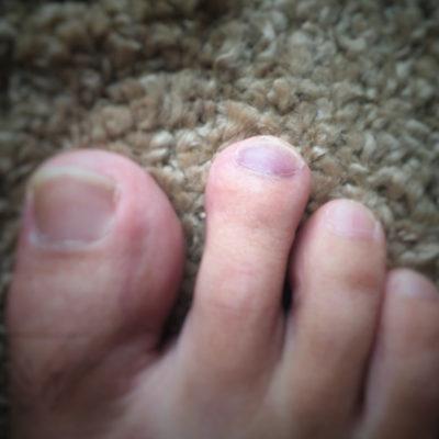足の爪内出血